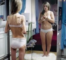 Dječija anoreksija