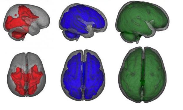 Nevjerovatan uticaj dojenja na razvoj djelova mozga