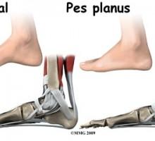 Dijete se može roditi sa ravnim stopalima ali se ona mogu steći i tokom života